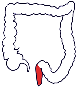 Anatomy outline of large intestine with rectum highlighted