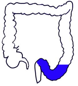 Sigmoid colon highlighted on large intestine drawing